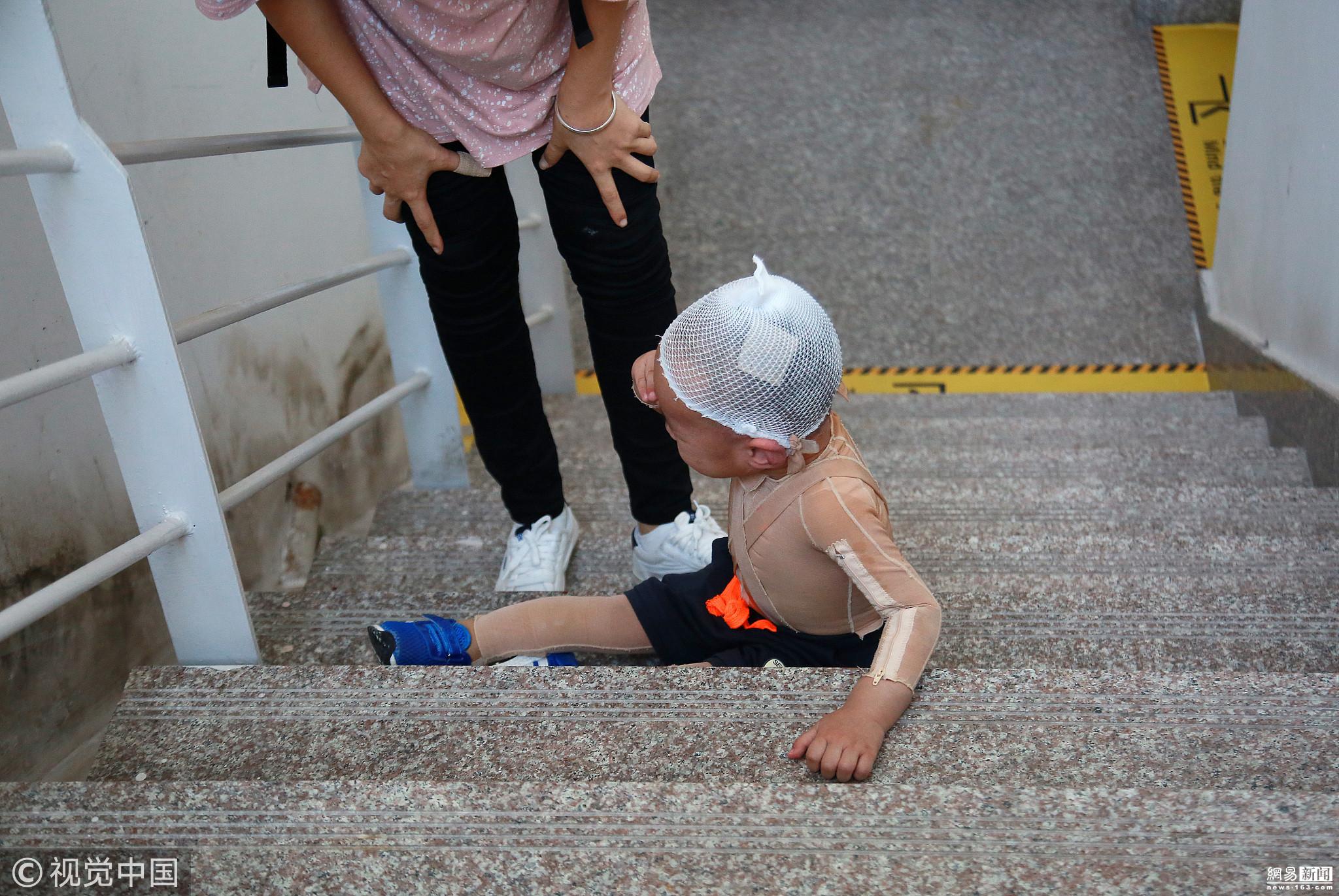 男童重度烫伤 妈妈逼其爬48层楼锻炼! - 周公乐 - xinhua8848 的博客