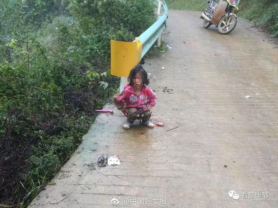 女孩遭狗撕咬头脸重伤 目击者:非野狗! - 周公乐 - xinhua8848 的博客