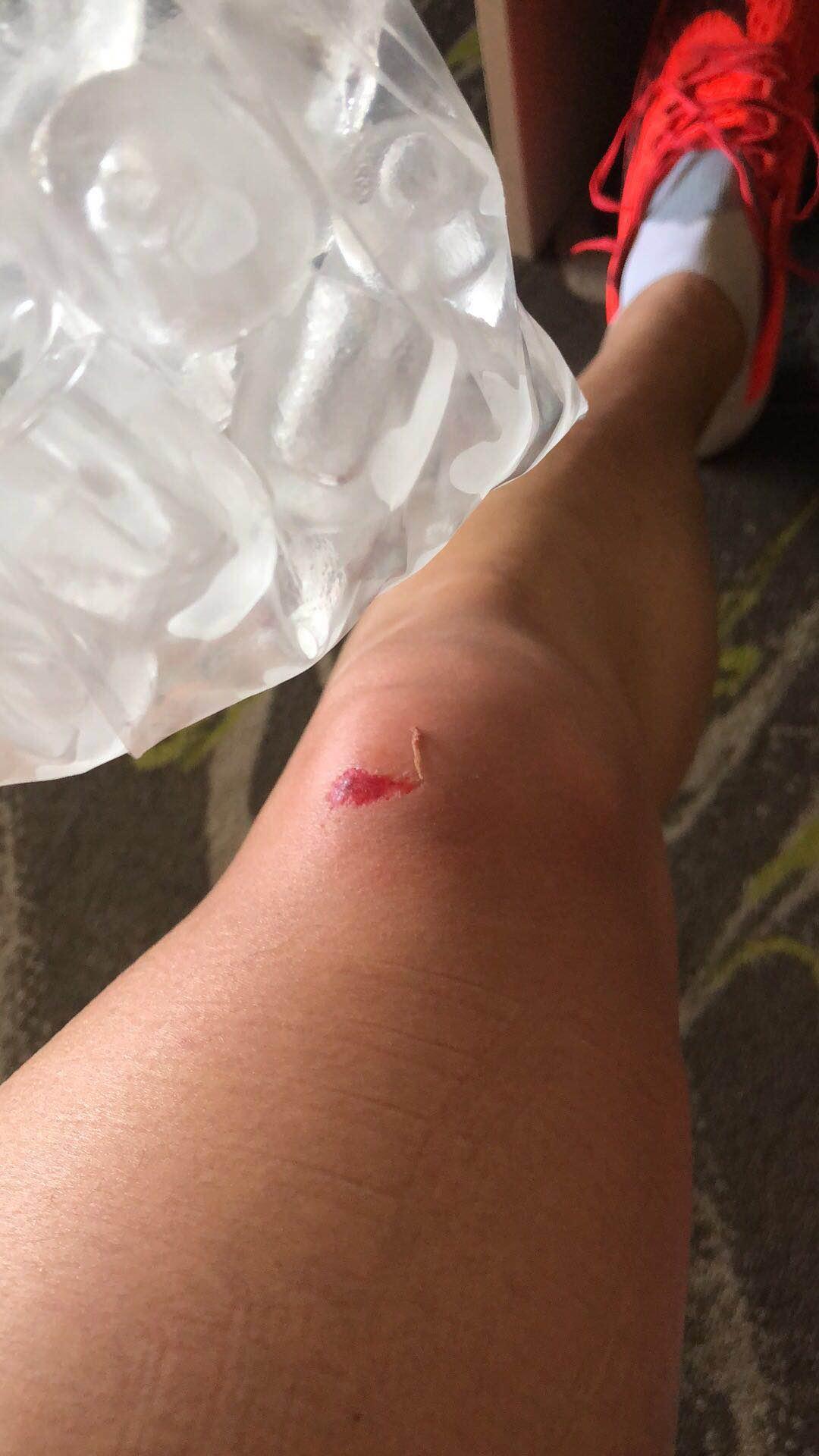 张培萌改项训练后第一摔 膝盖磕破条件艰苦